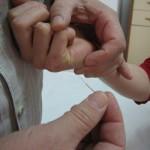 akupunktura na delu